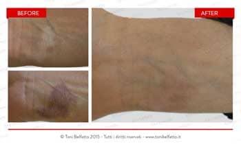 dermopigmentazione per coprire macchie