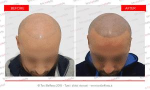 tricopigmentazione roma