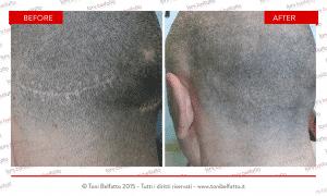 tricopigmentazione su capelli