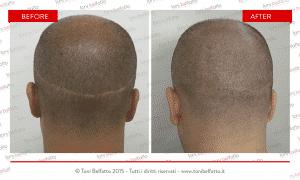 tricopigmentazione su ciatrice da trapianto