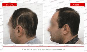 tricopigmentazione su cicatrice