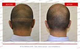 risultato di una tricopigmentazione capelli