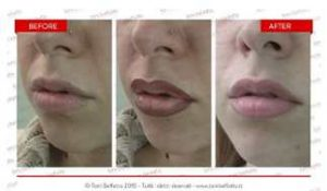 tatuaggio labbra