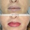 trucco permanente labbra prima e dopo