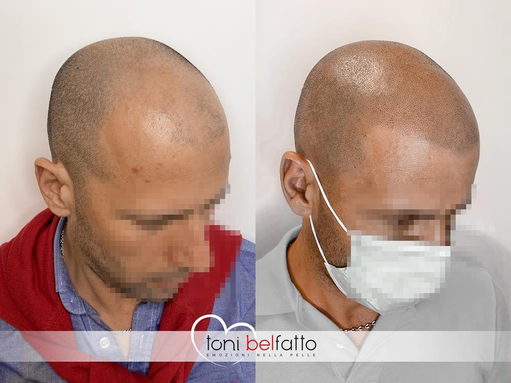 tricopigmentazione appena eseguita